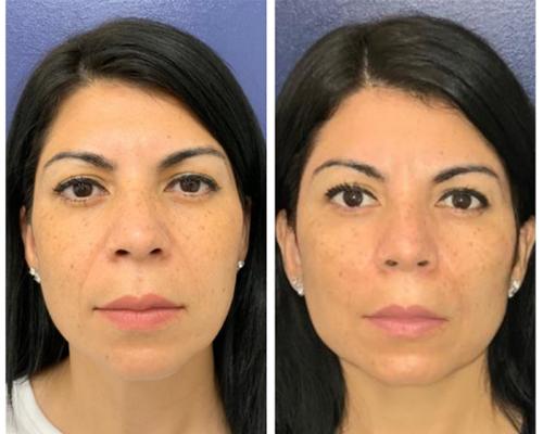 skin-rejuvenation-silhouette-instalift--2111