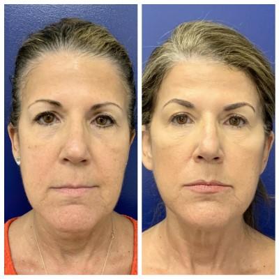 skin-rejuvenation-silhouette-instalift--2935