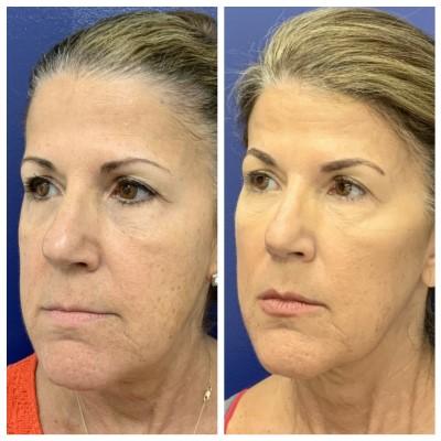 skin-rejuvenation-silhouette-instalift--2936