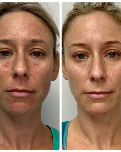 laser treatments before and after